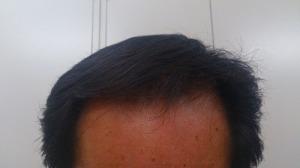 プロペシア 効果 1年後の前髪生え際